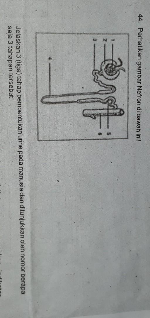 jelaskan 3 tahap pembentukan urine pada manusia dan ...