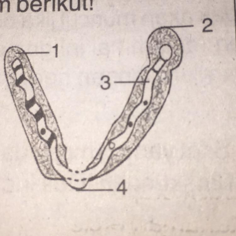 Perhatikan gambar kromosom berikut ! Pernyataan yang benar ...