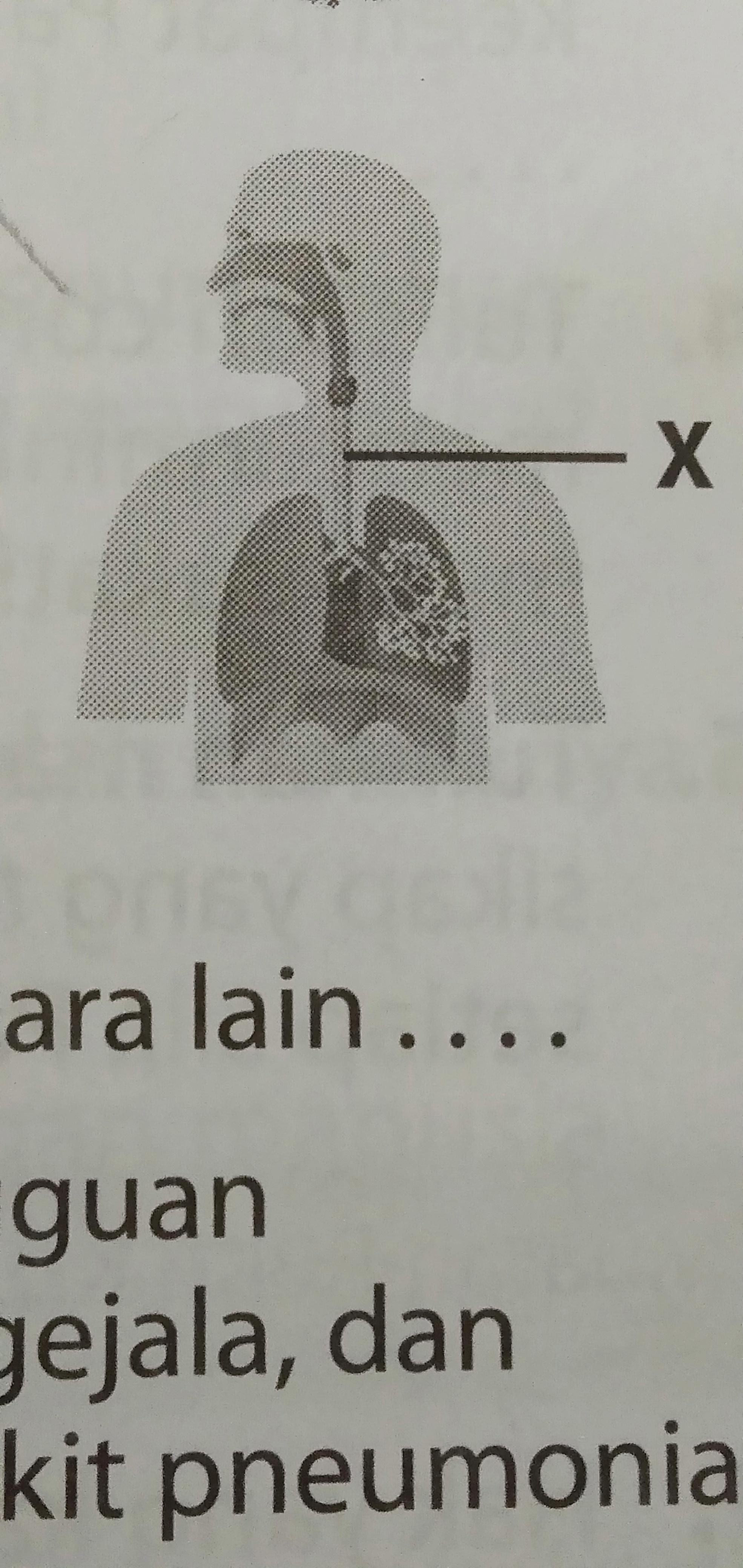 32+ Fungsi organ pernapasan yang ditunjukkan dengan huruf x adalah info